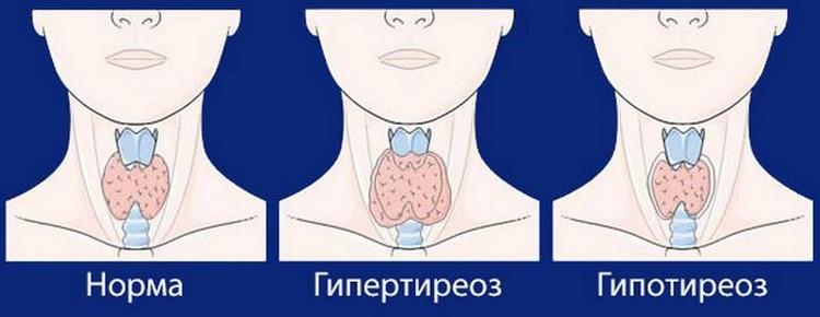 Нарушения щитовидной железы