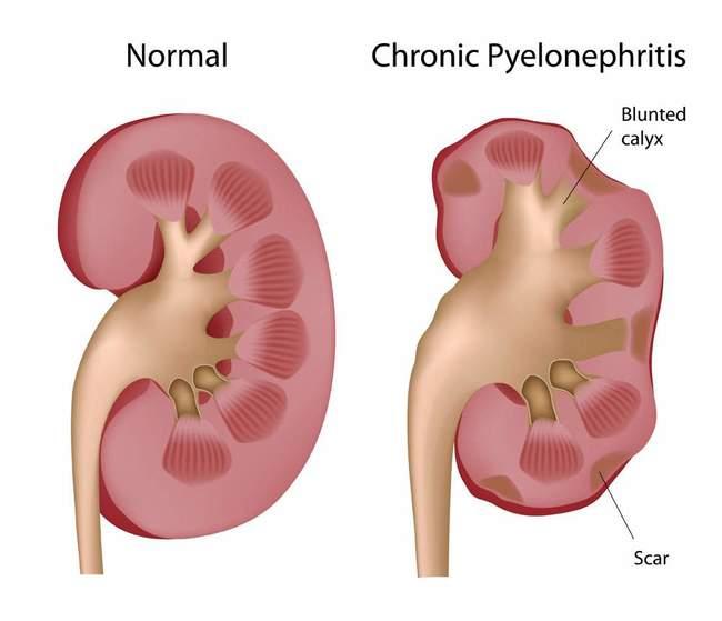 Пиелонефрит — воспаление почечных лоханок