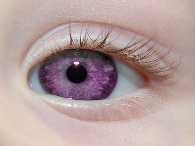 Фиолетовые глаза у ребенка