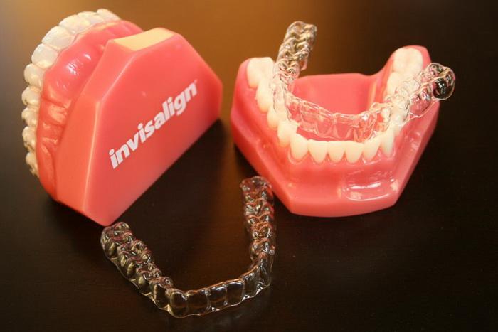 Внешний вид стоматологической капы на зубы