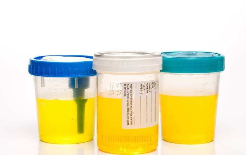 лейкоциты в моче могут свидетельствовать о наличии воспаления