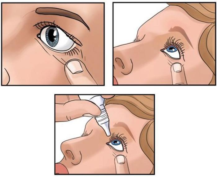Как правильно закапывать глазные капли.