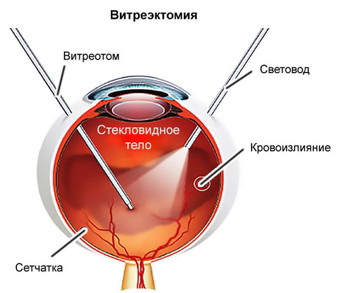Витрэктомия