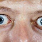 Выпячивание глаза