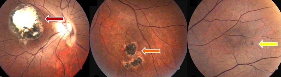 Лечение фиброз сетчатки глаза
