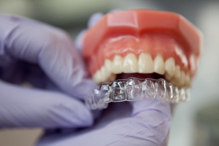 Виды стоматологических капп