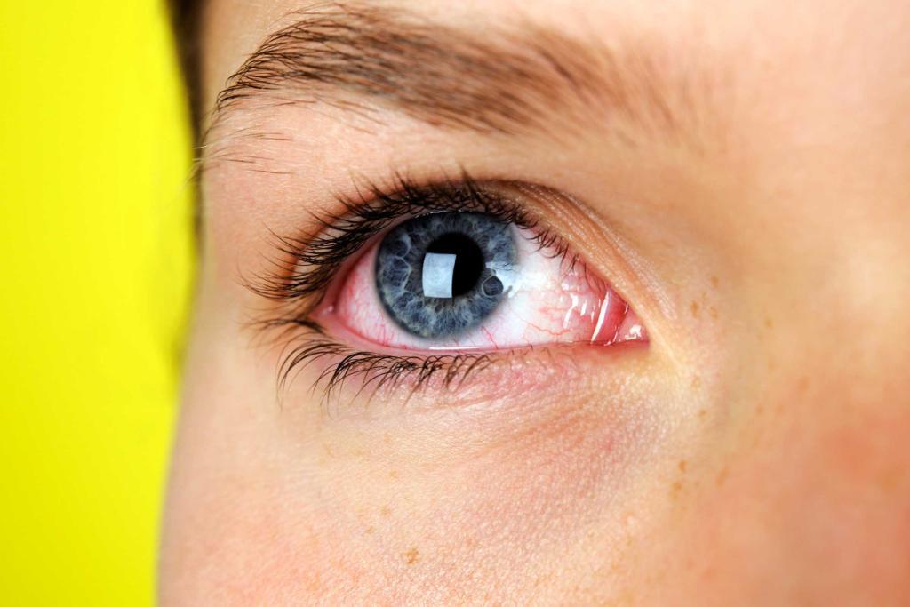 ирифрин бк глазные капли