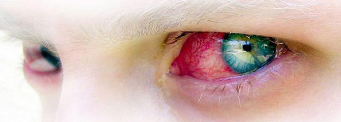 калия йодид глазные капли
