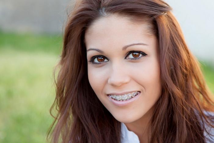 Изменение лица после лечения брекетами