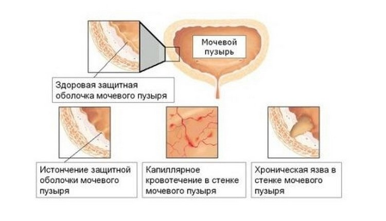 Работа мочевого пузыря