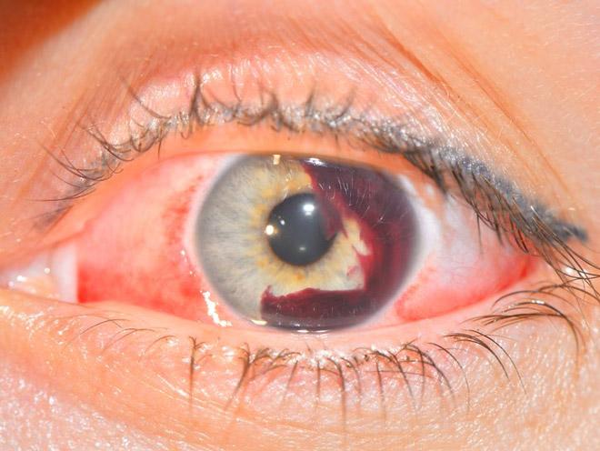 Внутриглазное кровотечение