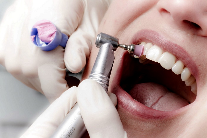 Шлифовка зубной эмали