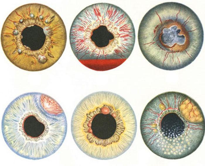 Разновидности вторичной глаукомы.