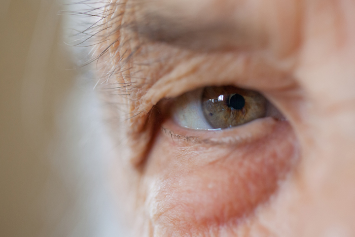 Как лечить глаукому без операции