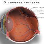 Операция глаукомы, виды операций, подготовка и послеоперационный период.