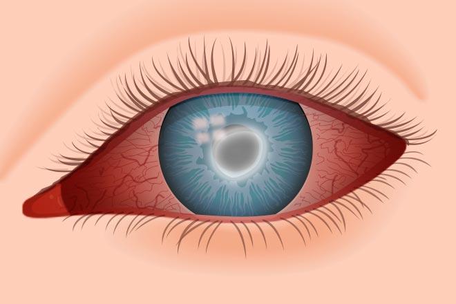 Почему болят глазные яблоки при движении