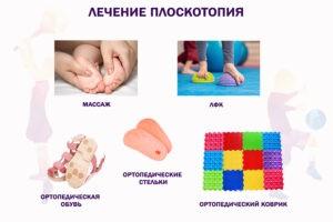 Лечение и профилактика плоскостопия