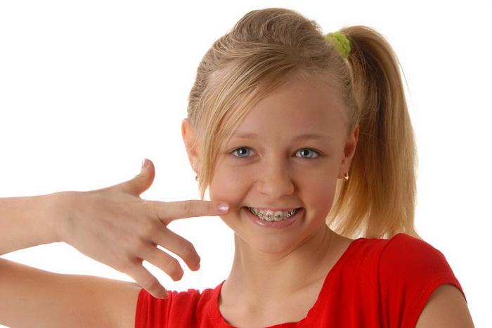 Детские брекеты. Особенности установки систем ребенку