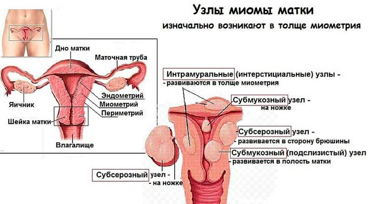 Как бороться с миомой матки интерстициальной формы?