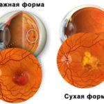 Малукодистрофия