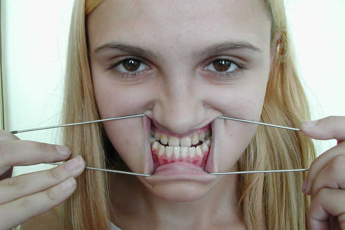 Исправляем искривление зубов. Причины недуга и способы корреции