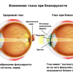 Классификация степени миопии