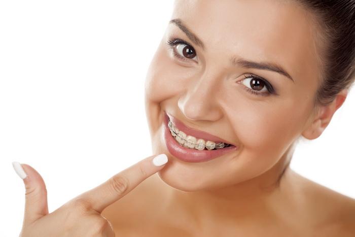 Зубы разъехались после установки брекетов. Что делать в этом случае?