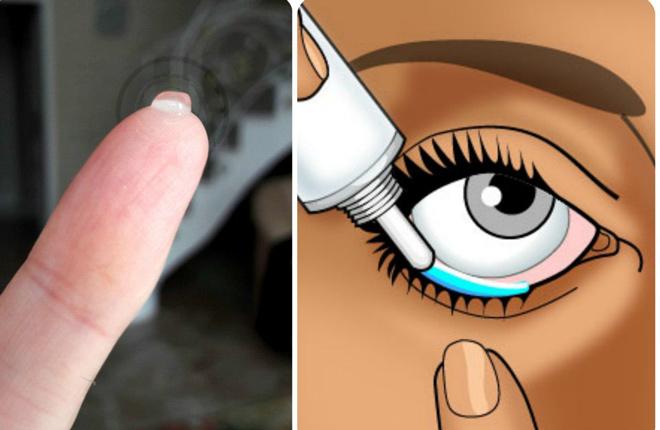 Корнерегель для глаз