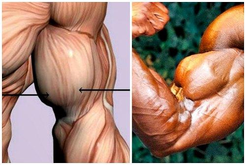 пучки мышц