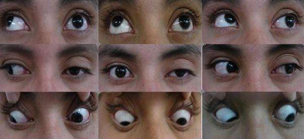 разновидностей офтальмоплегии