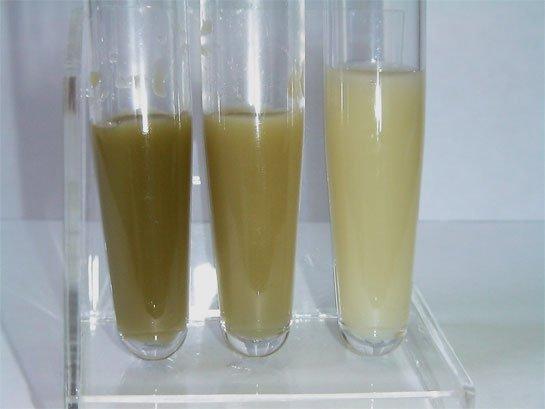 Какого цвета должно быть грудное молоко: жёлтое, прозрачное, голубое, зелёное, синее или красное
