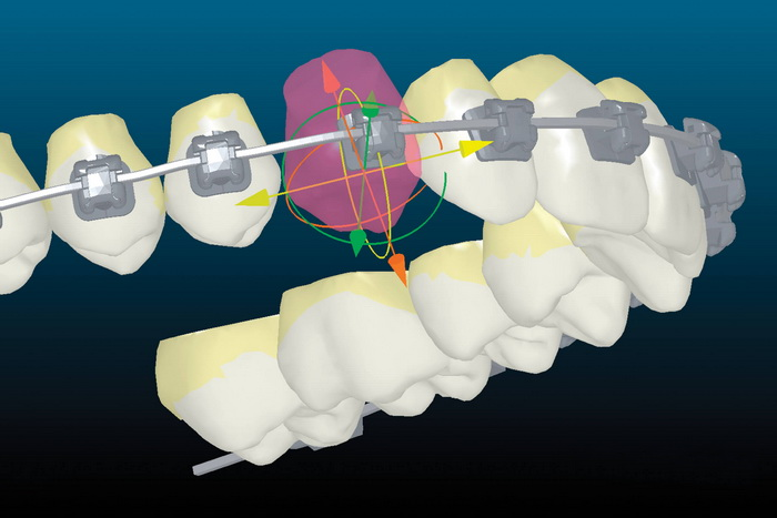 Специфика модели брекет-системы Inspire Ice