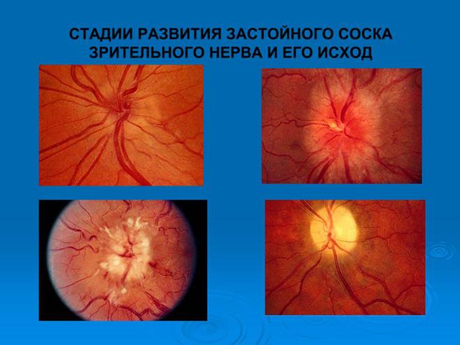 Стадии развития воспаления глазного нерва