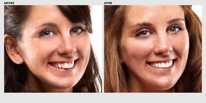 Фото лечения аномального прикуса до и после