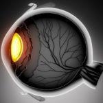 Хрусталик глаза 1
