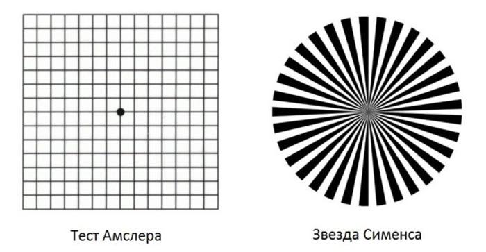 Выявление астигматизма при помощи теста Амслера и звезды Сименса