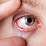 Раздражение глаз