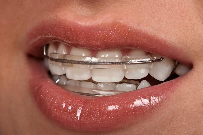 Ретейнеры на зубах