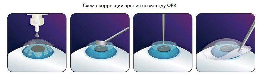 Фоторефракционная кератоэктомия