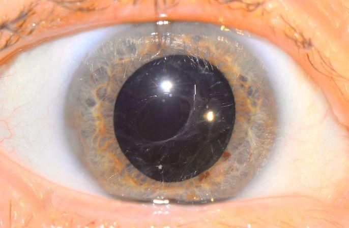 Вторичная катаракта