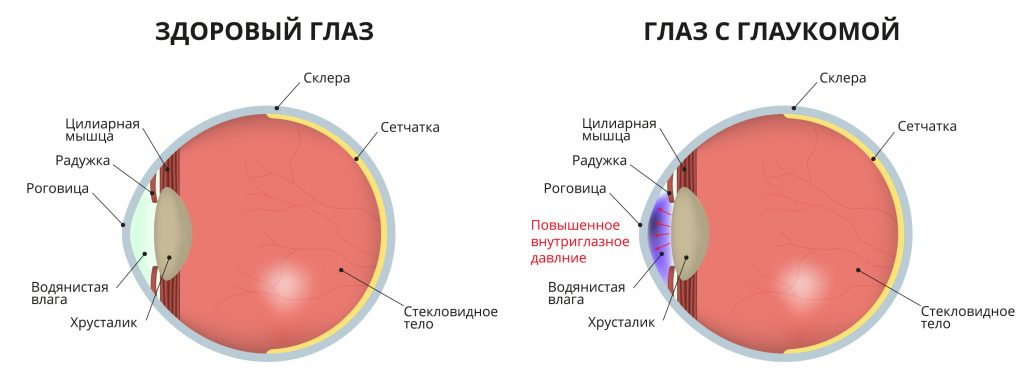 Определение глаукомы.