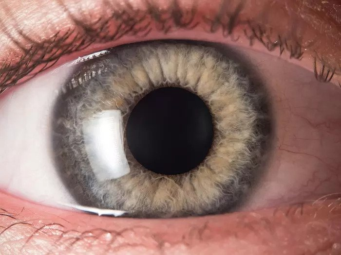 Голубой глаз открыт