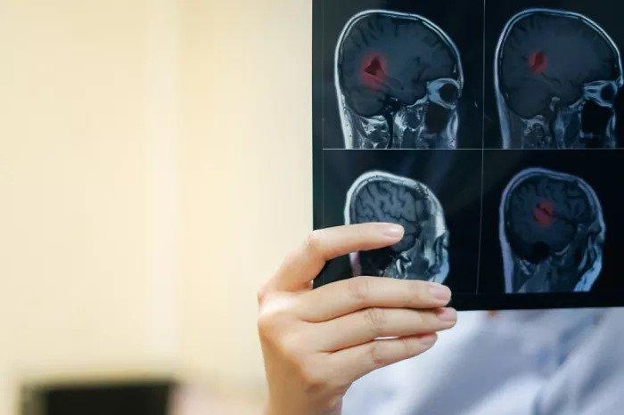 Врач смотрит на сканирование мозга