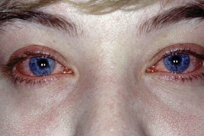 Симптомы конъюктивита