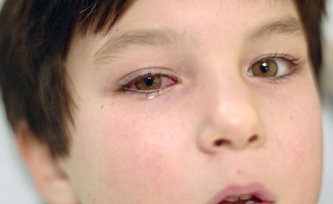Ожог сетчатки глаза