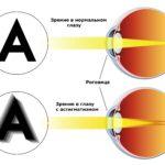 Как видит человек при астигматизме