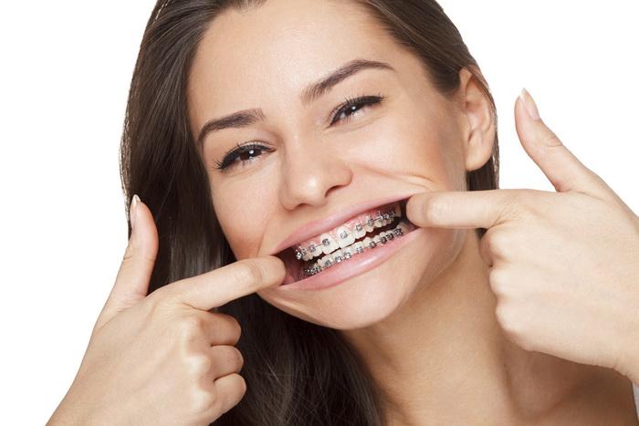 Выравнивание зубов брекет-системами