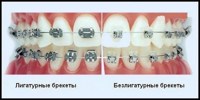 Отличие лигатурных брекет-систем от безлигатурных