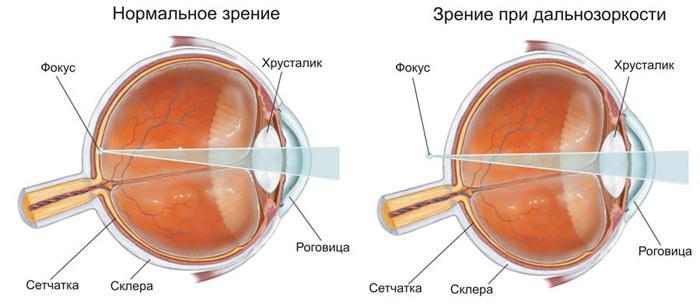 Гиперметропия слабой степени обоих глаз