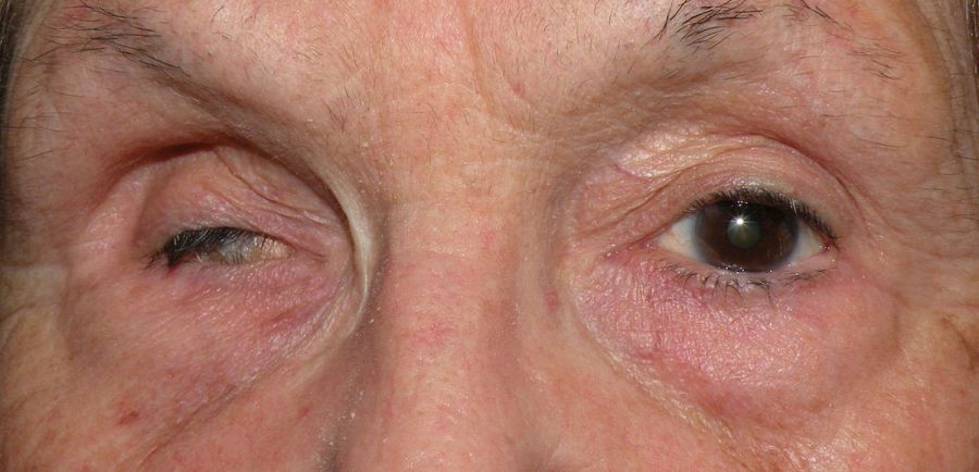 Деформация глазного яблока